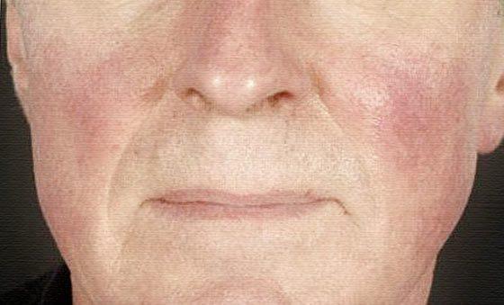 кожное заболевание розацеа