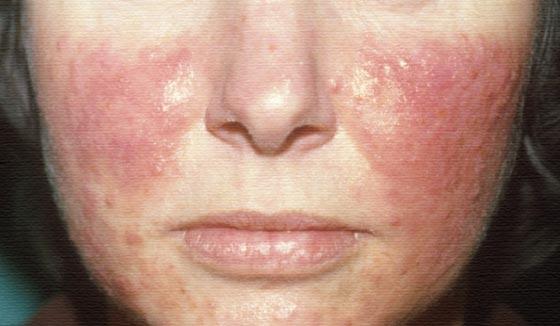 Розацеа на лице эффективное лечение