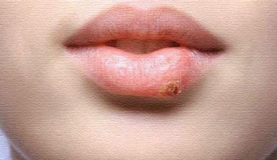 Может ли герпес на губе передаться при оральном сексе
