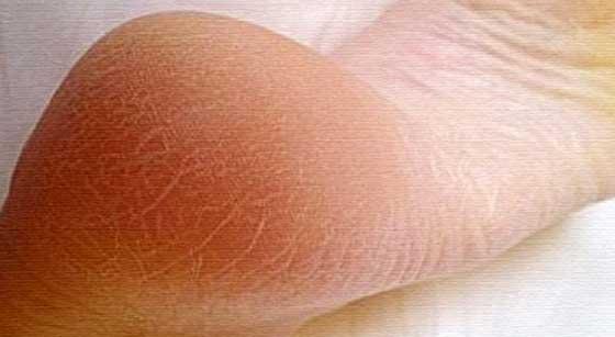 Порно сальск стопы в колготках забавы