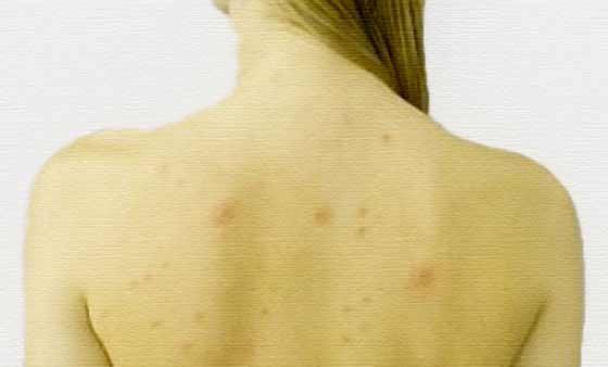 Гнойники на спине: причины появления и как от них избавиться
