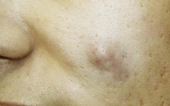 Чем вытянуть гной из-под кожи: самые эффективные средства