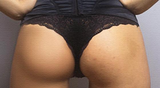 Как вылечить прыщи на попе у женщин