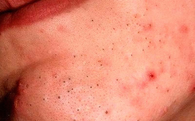 Как выдавить черные точки на лице и можно ли это делать?